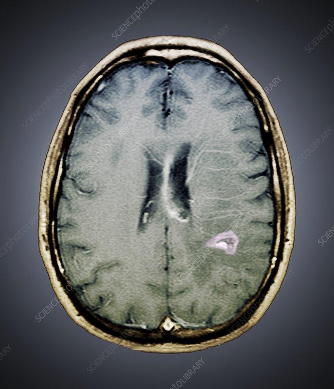 Tapeworm cyst in the brain, MRI scan