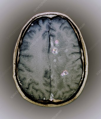 Tapeworm cysts in the brain, MRI scan