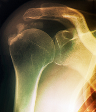 Tendinitis of the shoulder, X-ray