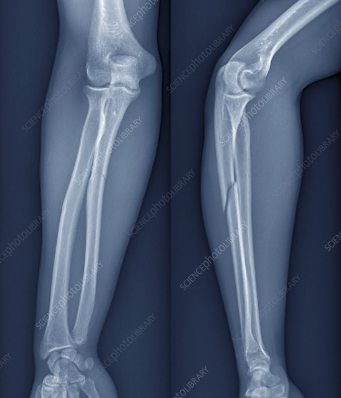 Broken arm, X-ray
