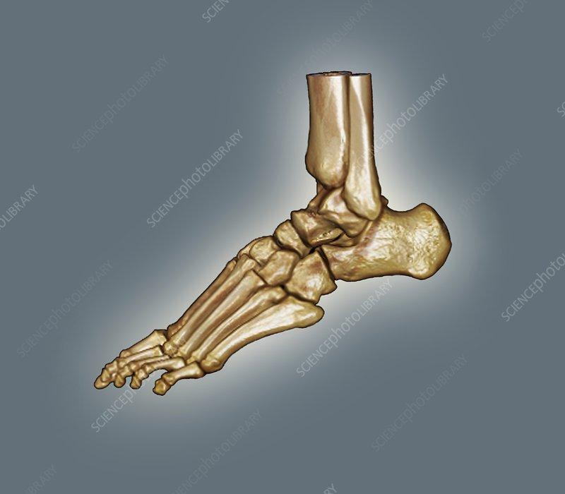 Normal foot, 3D CT scan