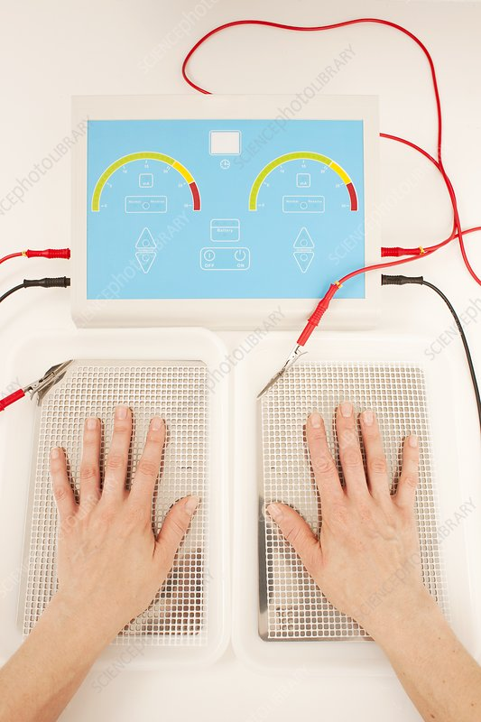 Iontophoresis for excess sweating