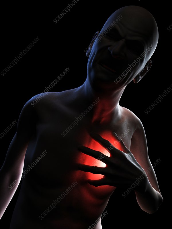 Heart attack, conceptual artwork