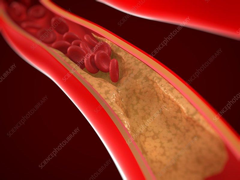Narrowed artery, artwork