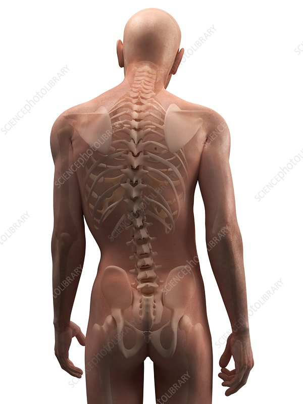 Scoliosis of the spine, artwork
