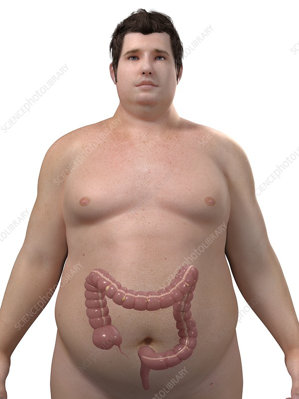 Obese man's colon, artwork