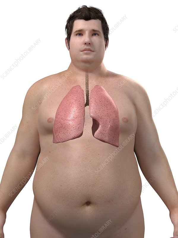 Obese man's lungs, artwork