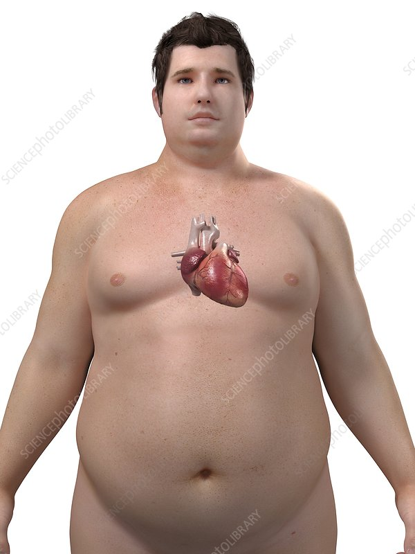 Obese man's heart, artwork