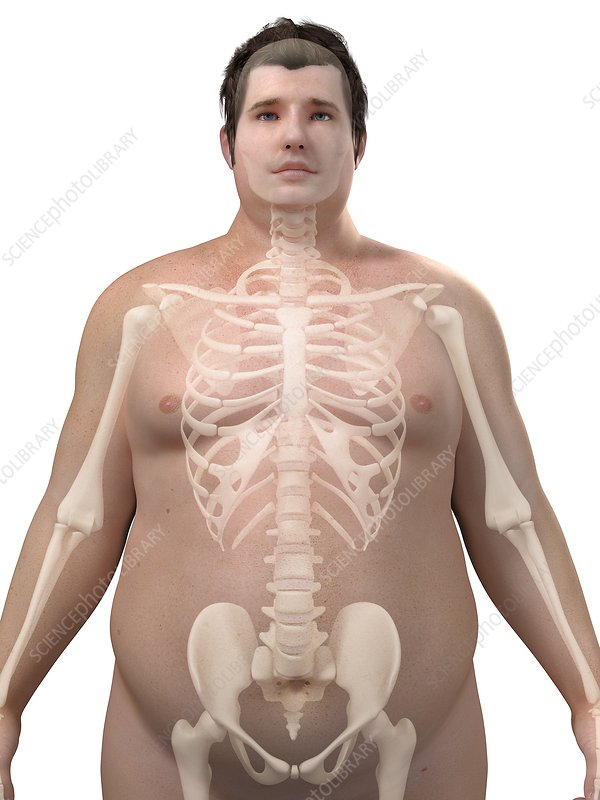 Obese man's skeleton, artwork