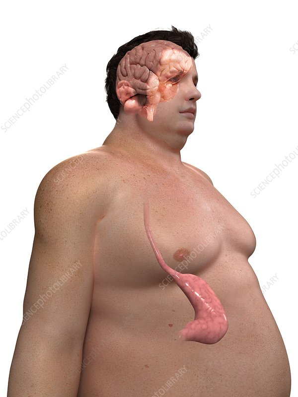 Obese man's stomach, artwork
