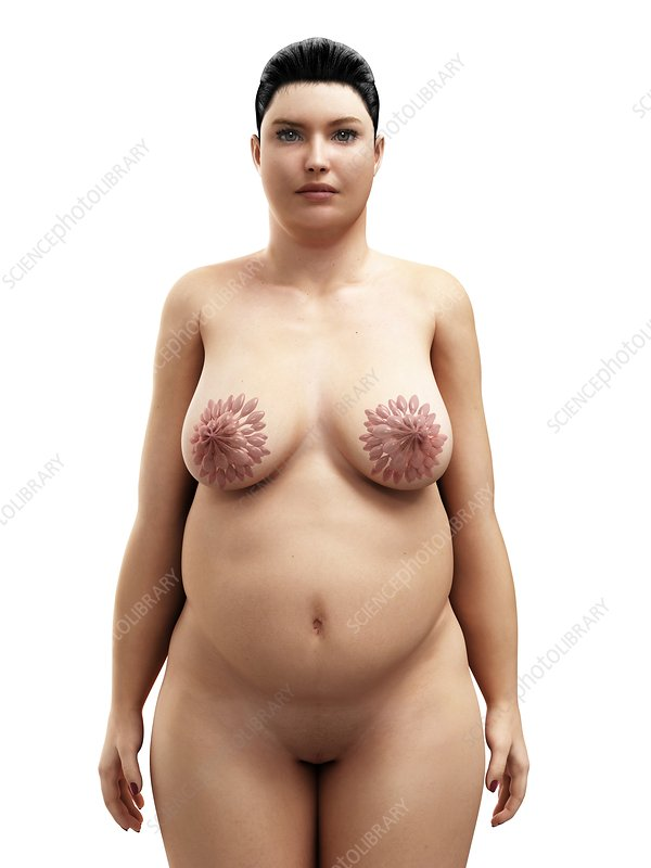 Obese woman's breasts, artwork