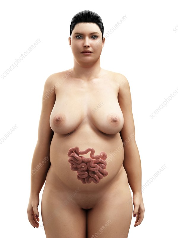Obese woman's intestines, artwork