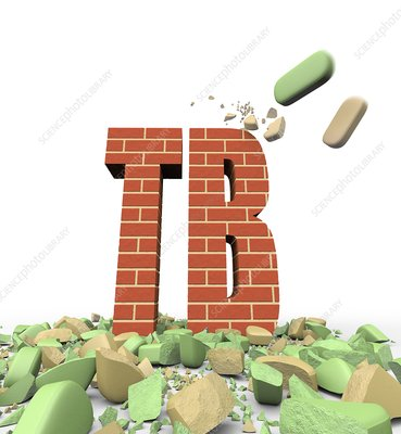 Tuberculosis resistance to some drugs