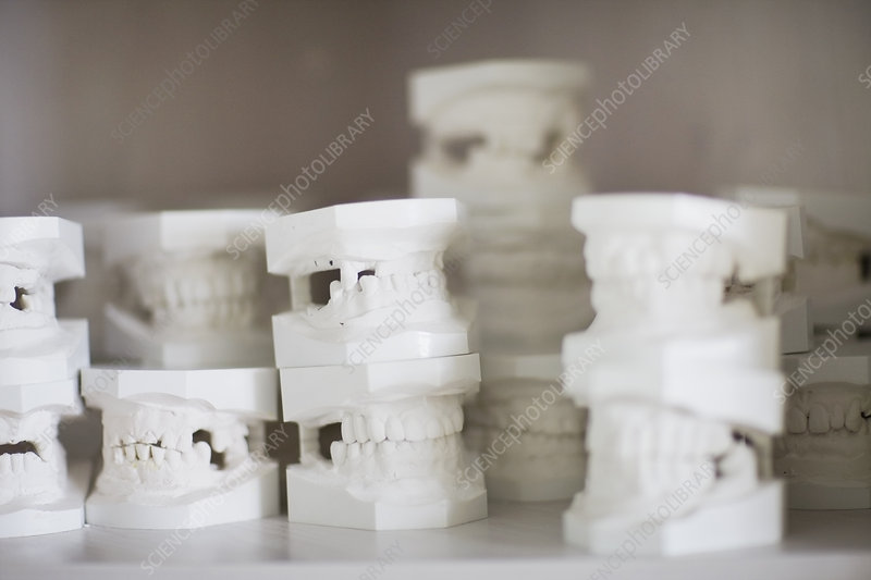 Plaster models of teeth