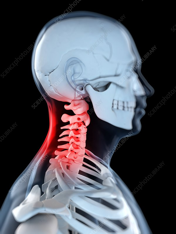 Neck pain, conceptual artwork