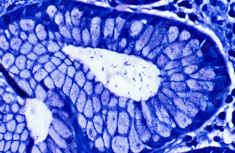Helicobacter pylori in antral crypt