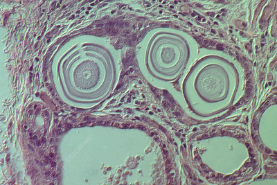 Close up of breast calcification cells