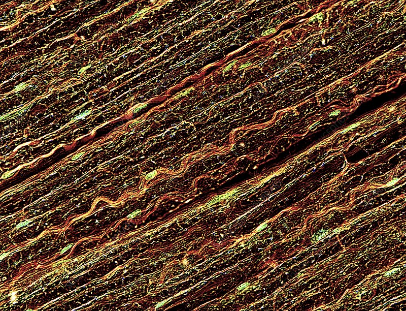 Nerve fibres, light micrograph