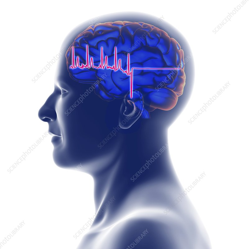 ECG trace and head with brain, artwork