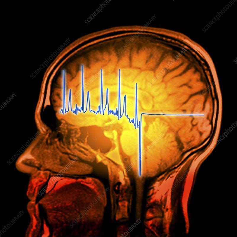 ECG trace and mri brain scan, artwork