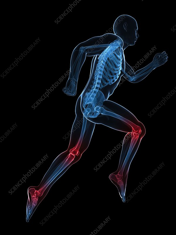 Running injuries, conceptual artwork