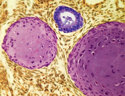 Testicular cancer, light micrograph