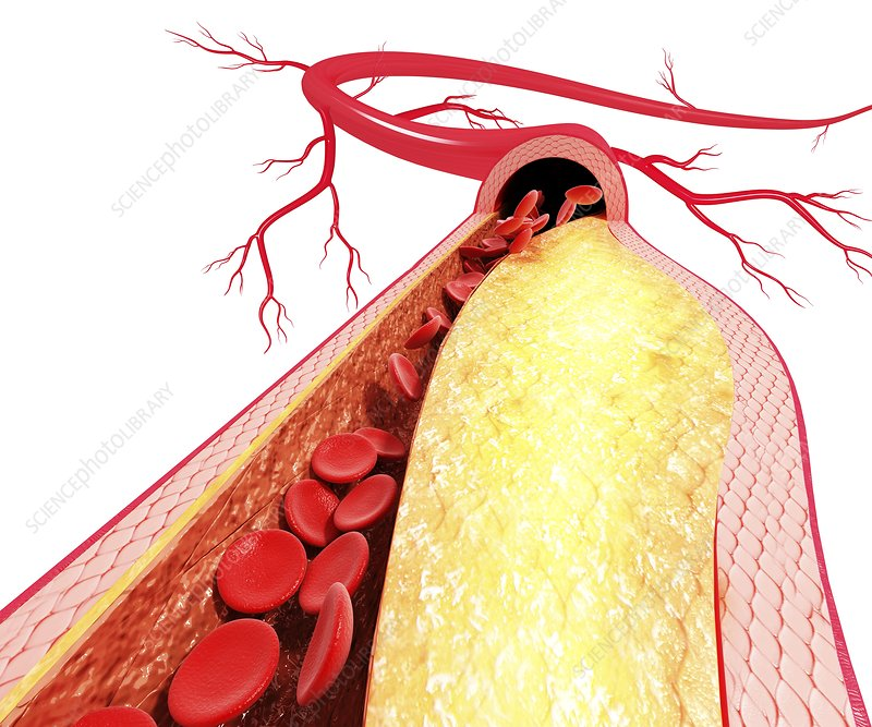 Atherosclerosis, artwork