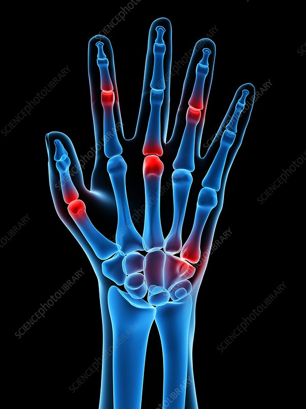 Hand joint pain, conceptual artwork