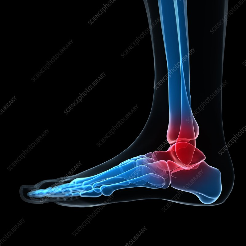 Ankle pain, conceptual artwork
