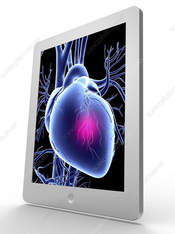 Tablet computer, heart attack artwork