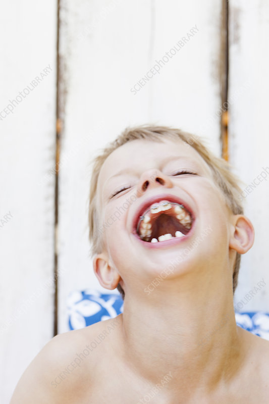 Close up of boy with braces laughing