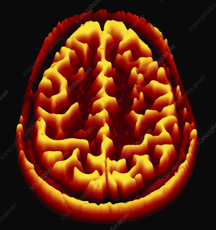 Brain scan, MRI scan, heightmap