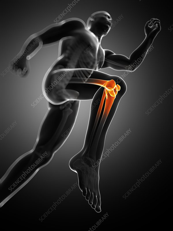 Knee pain, conceptual artwork