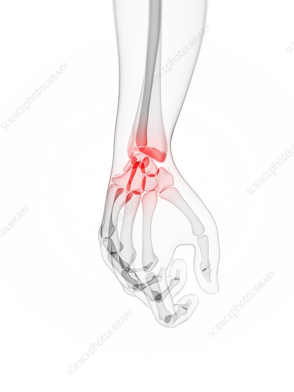 Wrist pain, conceptual artwork
