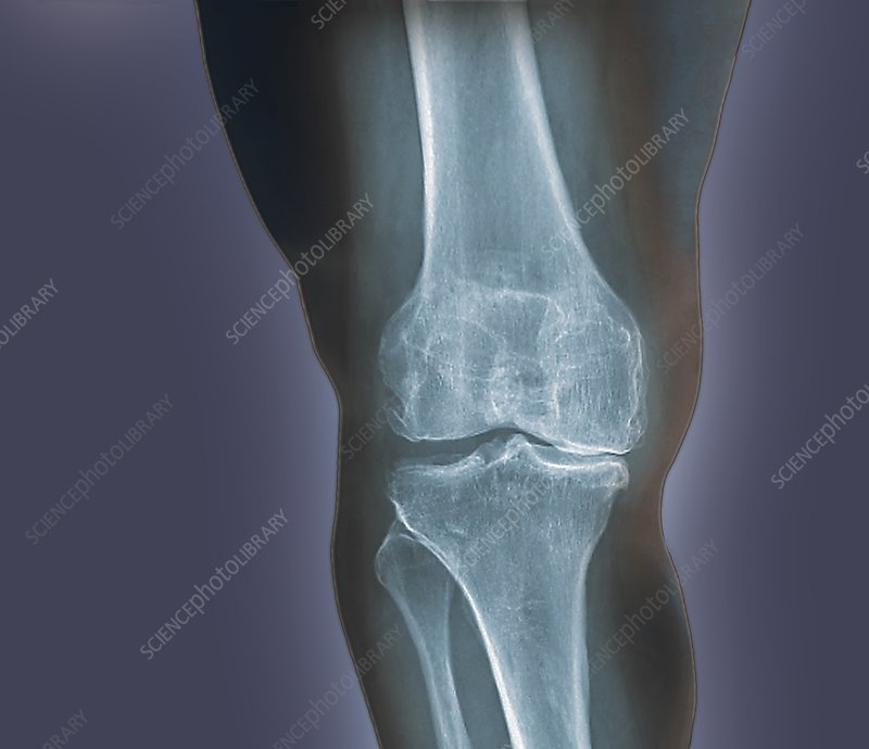Arthritis of the knee, X-ray
