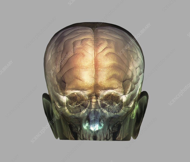 Human head, 3D CT and MRI scans