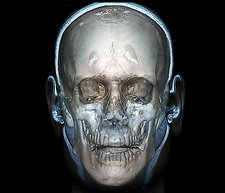 Human head, 3D CT scan