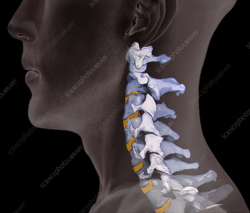 Normal neck bones, 3D CT scan - Stock Image F006/9114 - Science ...