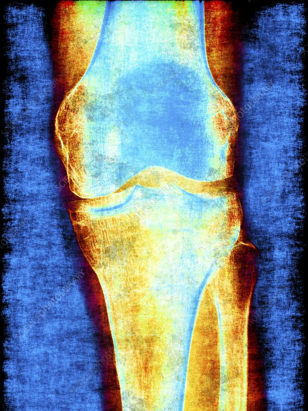 Knee joint, x-ray, artwork