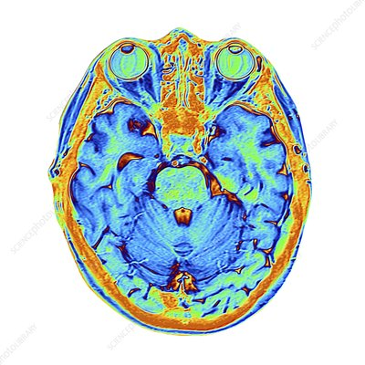 Coloured MRI scan of the human head