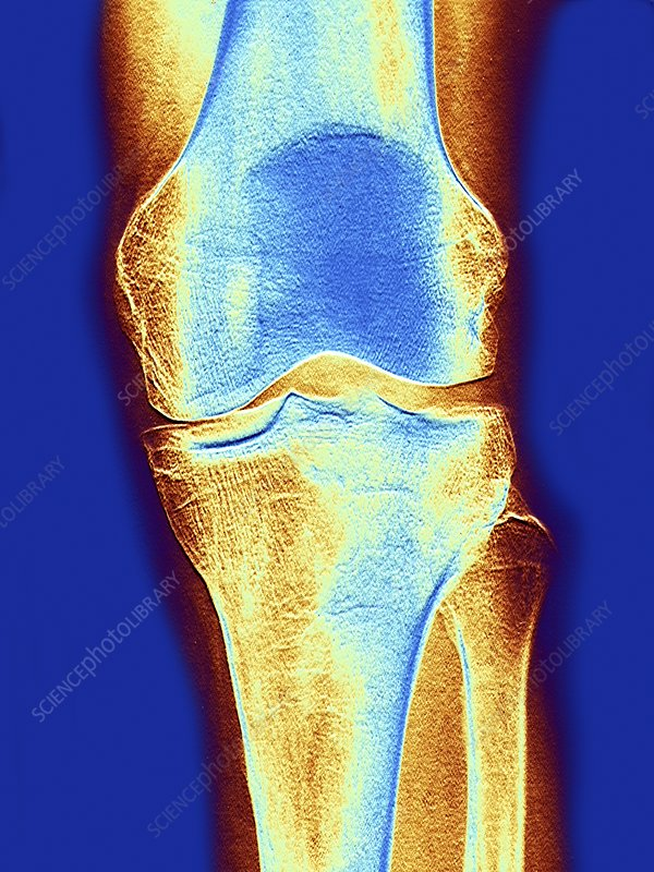 Knee joint, x-ray