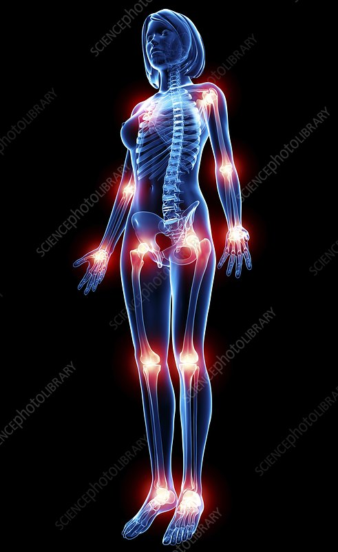 Joint pain, artwork - Stock Image F007/5110 - enlarged - Science Photo ...