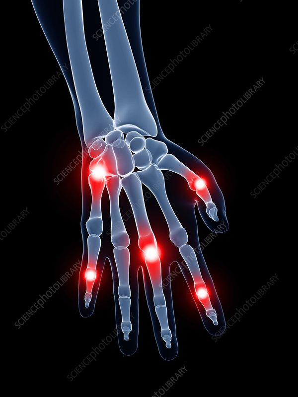 Painful finger joints, artwork
