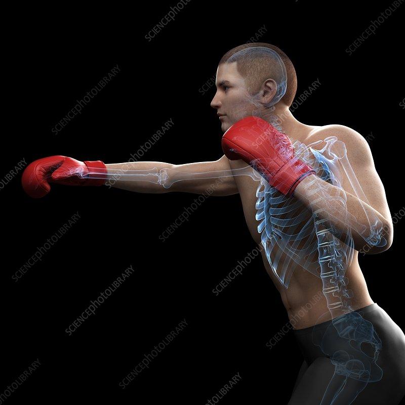 Boxer, artwork