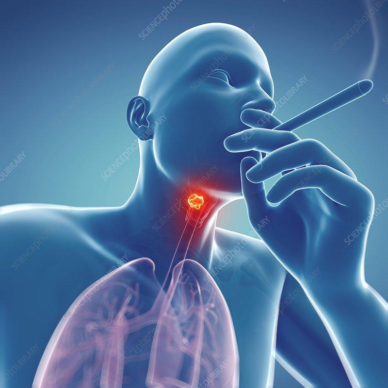 Larynx cancer, artwork