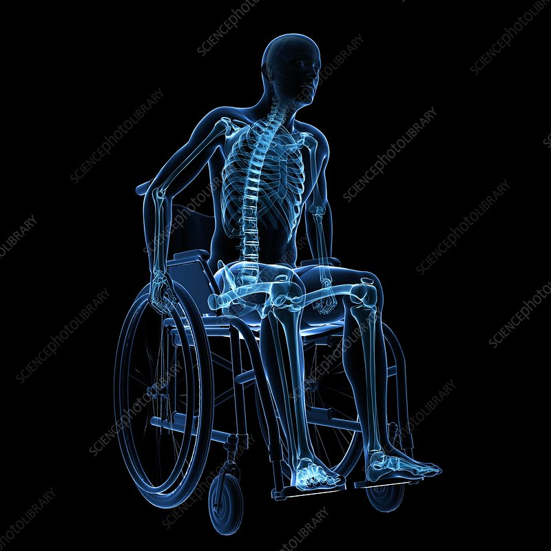 Man in a wheelchair, artwork