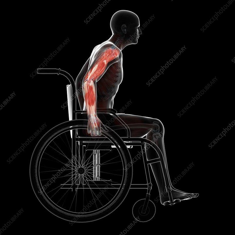 Man in a wheelchair, artwork