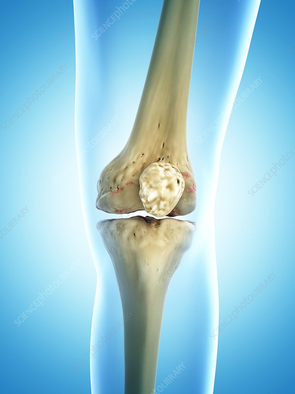 Arthritic knee, artwork