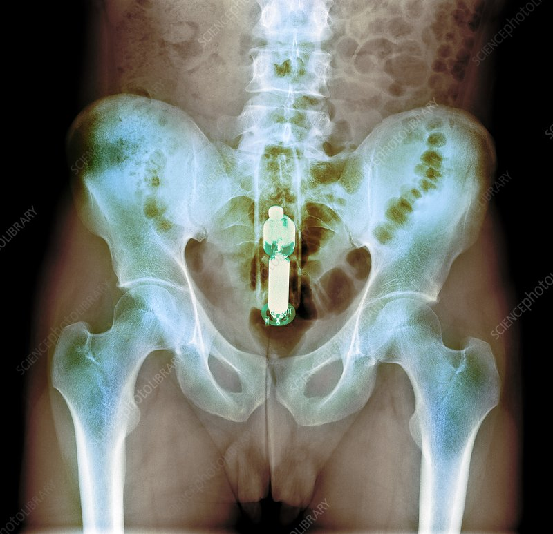 Foreign object in rectum, X-ray