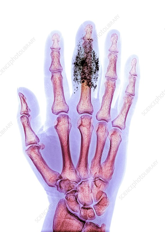 Foreign body in finger, X-ray